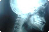 cranial sacreal skeletal xray