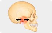 skull pain point diagram